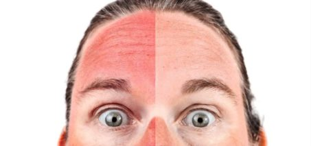 Comment éviter les Coups de soleil
